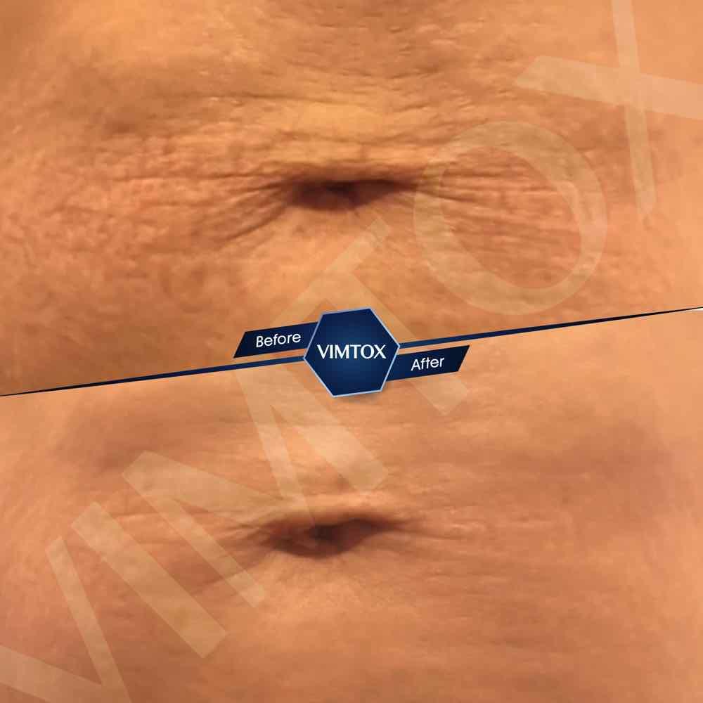 VIMTOX V-LINE LIFTING MIST